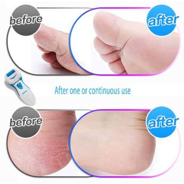 As Seen on TV Care Me Rechargeable Electric Foot Callus Remover